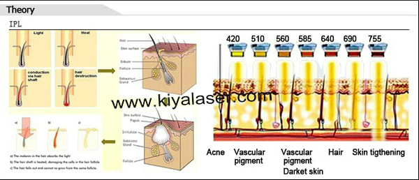 theory of IPL Hair removal.jpg